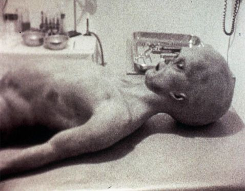 The Roswell alien corpse